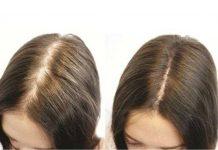 Hướng dẫn cách chăm sóc tóc sau khi trị bệnh hói đầu bằng công nghệ cao