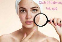 4 cách loại bỏ thâm mụn giúp da không để lại sẹo rỗ